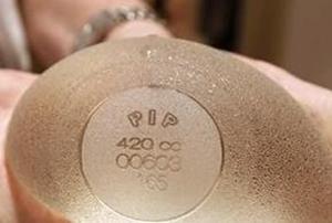 2012 พบ 8 รายเป็นมะเร็งจากสิลิโคนPIPเสริมหน้าอกที่ฝรั่งเศส