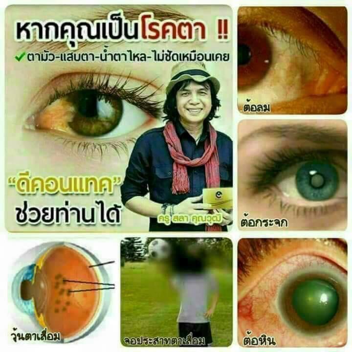 ดีคอนแทค dcontact เหมาะกับผู้ที่มีอาการ ระคายเคืองตา ตาพร่ามัว แสบตา มองไม่ชัด สาเหตุจากโรคต้อต่างๆ เห็นผลเร็ว ครูสลาไมค์ทองคำแนะนำ ใช้ดีจริงๆ